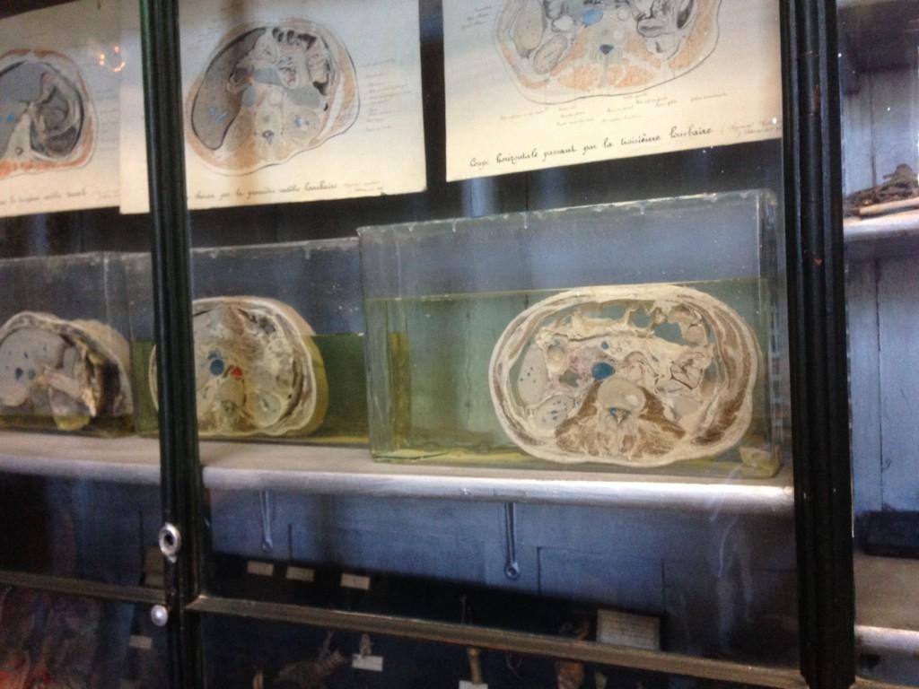 モンペリエ大学医学部の人体解剖